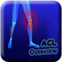 acl overview