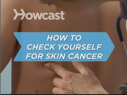 Google Skin Cancer
